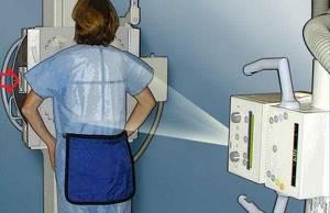 Можно ли беременным делать флюорографию на ранних сроках, последствия