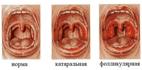 Сильно болит горло: что делать, чем быстро вылечить