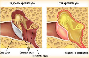 Заложило ухо при насморке: почему так происходит, как снять симптом, чем лечить, обзор отзывов, опасность отита, что делать, чтобы избежать осложнения
