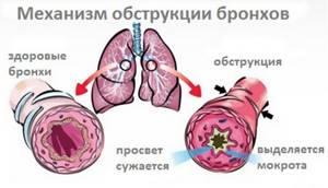 Кашель с мокротой: какого цвета должно быть отделяемое из дыхательных путей, почему бывает после еды, по утрам, причины вязкого секрета, как откашлять