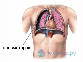 Открытый пневмоторакс – симптомы, лечение и первая неотложная помощь
