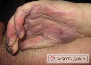 Асфиксия: виды, причины, последствия, симптомы