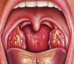 Лакунарная ангина: причины, симптомы и способы лечения