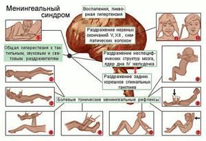 Менингит у детей: симптомы, менингеальные признаки, характер сыпи, как проявляется у новорожденных, лечение, последствия, меры профилактики
