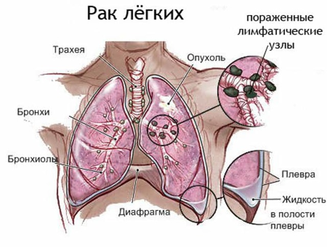 Рак легких – первые симптомы и признаки у мужчин и женщин на ранней стадии
