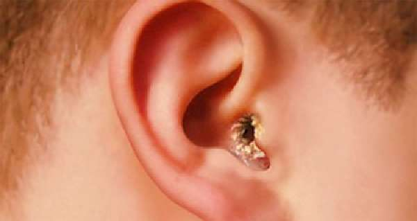 Можно ли капать перекись водорода в ухо, как капать правильно
