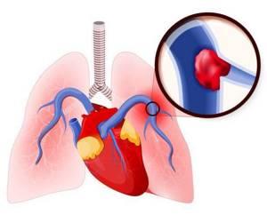 ТЭЛА (тромбоэмболия легочной артерии) – лечение болезни