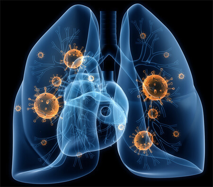 Пневмония: признаки и симптомы у взрослого