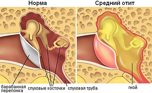 Отит (воспаление уха) у детей – что это такое, симптомы и лечение