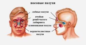 Киста гайморовой пазухи: что это такое, ретенционное и одонтогенное новообразование, симптомы, в чем угроза, лечение, операция по эндоскопическому удалению