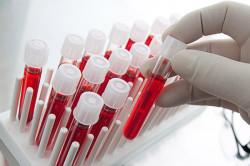 Симптомы и лечение аденоидов у взрослых: бывает ли воспаление носоглоточной миндалины после 18 лет, признаки, причины, как удаляют и последствия удаления