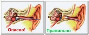 Можно ли перекисью водорода чистить уши самостоятельно в домашних условиях