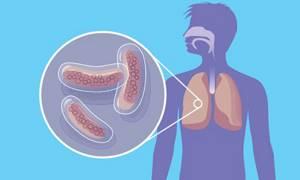 Пневмоторакс – что это за болезнь, симптомы (признаки), неотложная помощь и лечение