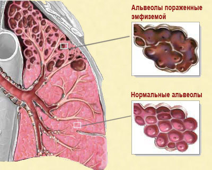 Эмфизема легких – что это такое, симптомы и лечение