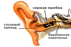 Перекись водорода в ухо от пробок, удаление серной пробки