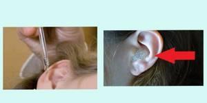 Перекись водорода в ухо при отите, лечение