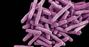 Палочка Коха (mycobacterium tuberculosis) – что это такое?