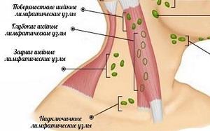 Лимфаденопатия шейных лимфоузлов у взрослых и детей