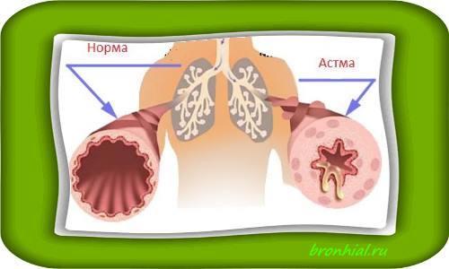 Первые признаки бронхиальной астмы у взрослого