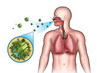 Прикорневая пневмония - причины, симптомы, лечение