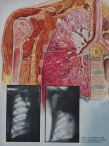 Рак бронхов: первые признаки у мужчин и женщин, симптомы бронхогенной карциномы, классификация по А.К. Струкову, бронхоальвеолярный аденоматоз легких, прогноз жизни
