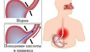 Тяжесть в грудной клетке: посередине, трудно, тяжело дышать, что делать?