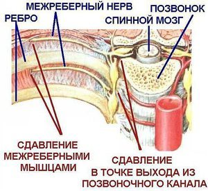 Давит в грудной клетке: справа, слева, посередине, что делать?