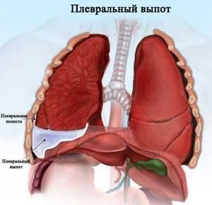 Плеврит легких – симптомы и лечение