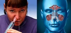 Морская соль для промывания носа: как промывать в домашних условиях