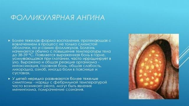 Фолликулярная ангина - лечение и симптомы болезни