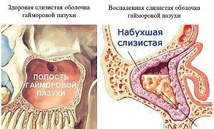 Катаральный гайморит: что это такое в острой форме, левосторонний, правосторонний, двухсторонний, лечение у взрослых и детей