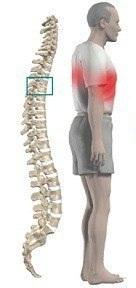 Опоясывающая боль в области грудной клетки и спины